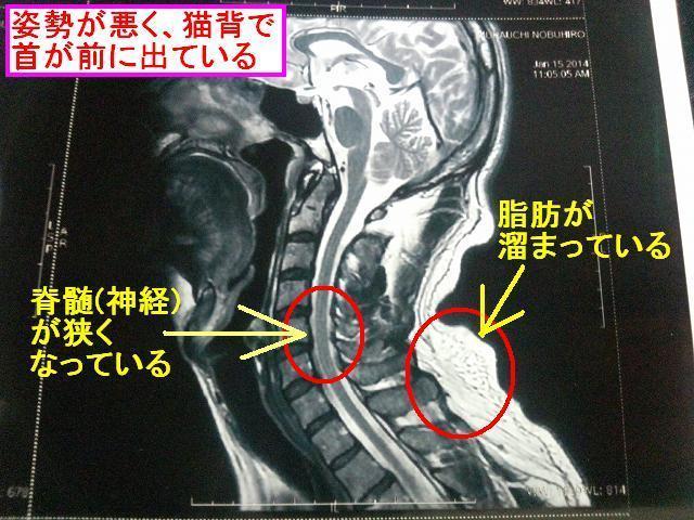 首猫背が首の痛みの原因 (脳梗塞ではなかった)