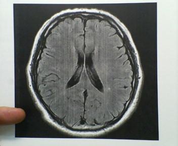 脳ドックのMRI画像