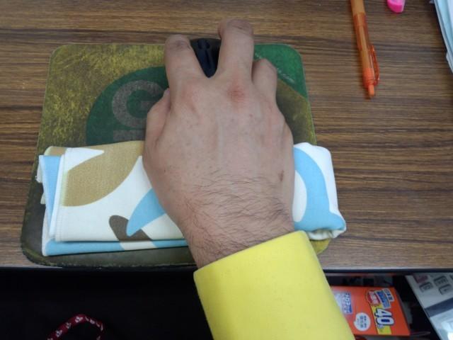 右の手首の痛み