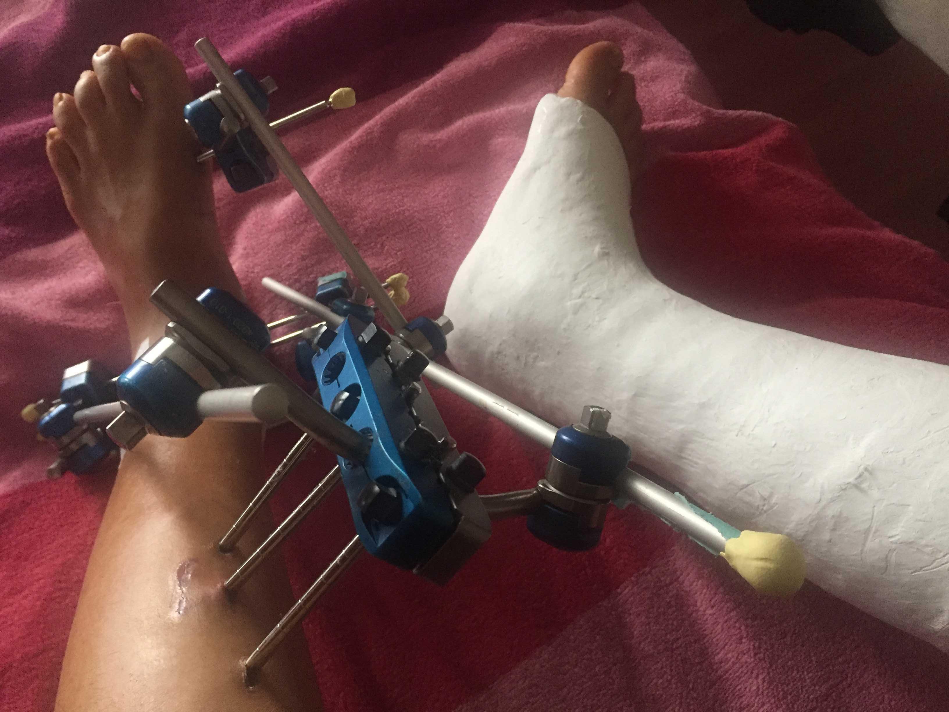 複雑骨折のサポート器具に小細工^_^; - フランスで山歩き