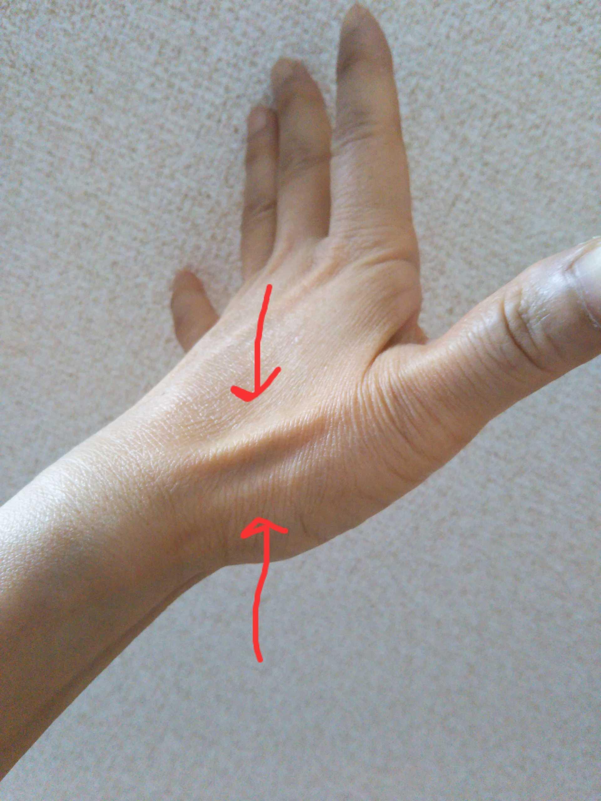 治る 自然 に バネ 指 は