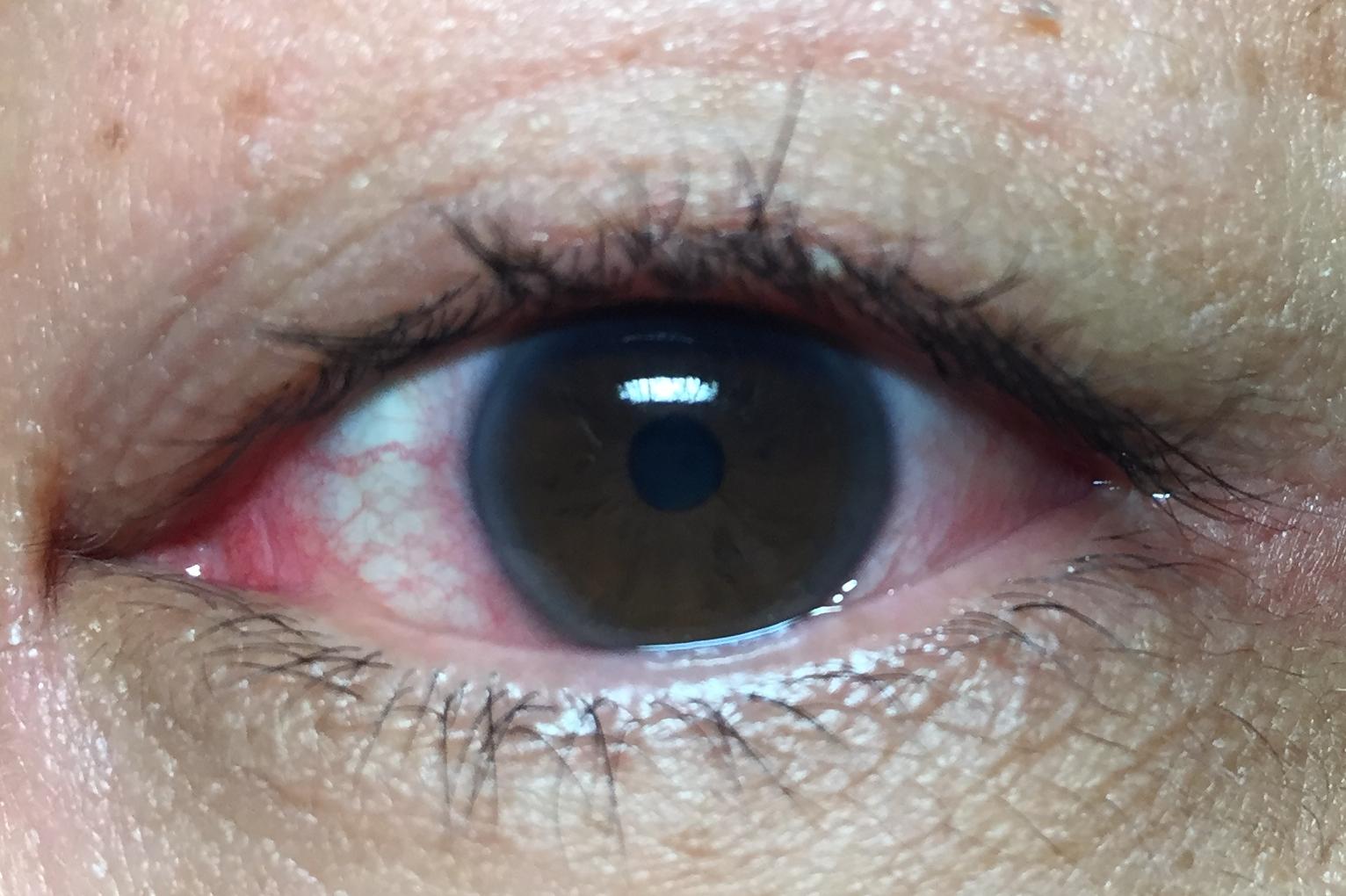 ヒリヒリ 痛い 目 が 病院は何科?「外傷なしなのに皮膚がヒリヒリ」神経障害性疼痛や帯状疱疹かも