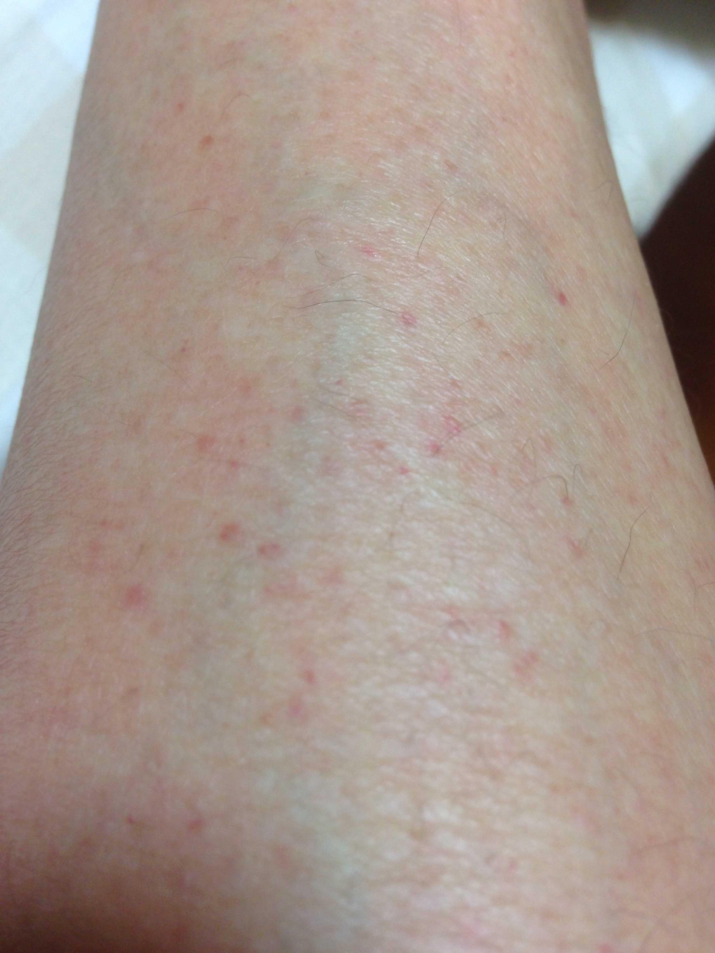 赤い 斑点 足